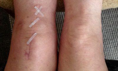 Svullnad efter knäledsoperation