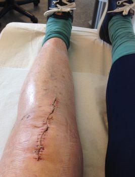 svullnad efter knäoperation