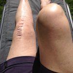 Snart 12 veckor med ny knäled.
